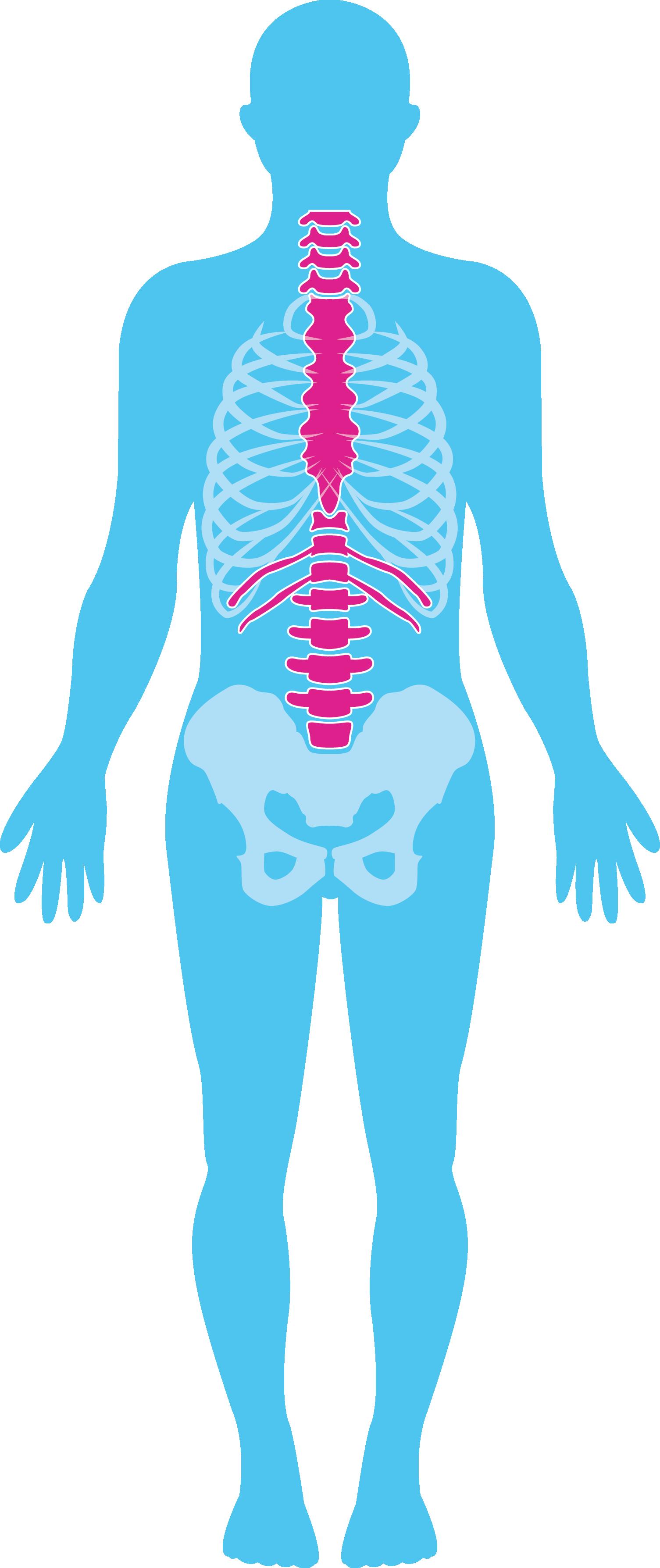 Dwarslaesie lichaam